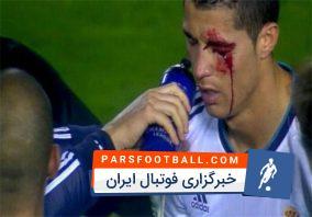 وحشیانهترین خطا های تاریخ فوتبال