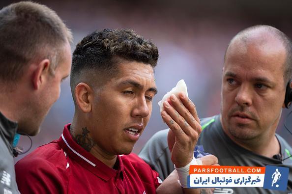 روبرتو فرمینو امروز به شدت از ناحیه چشم آسیب دید ؛ خبرگزاری فوتبال ایران