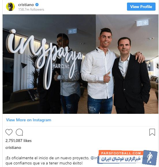 رونالدو مدتی قبل رسما اعلام کرد در صدد تاسیس یک کلینیک پیوند مو است رونالدو برای افتتاح پروژه جدید خود به پایتخت اسپانیا سفر کرده است.