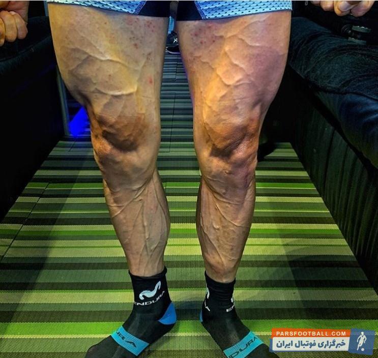 خوزه خواکین روخاس دوچرخهسواری 33 ساله تصویری از عضلههای پای خود را در صفحه اجتماعیاش منتشر کرده عضله پای خوزه خواکین روخاس شکل عجیبی دارد.