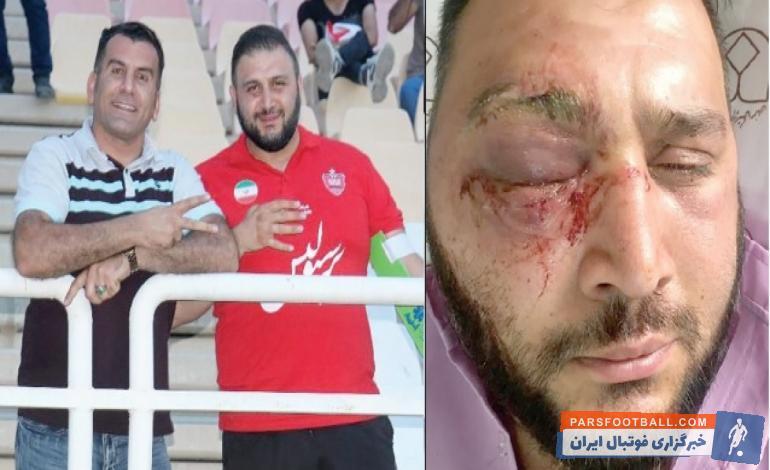 پرسپولیس ؛ فرشید آقابالازاده : من شاهد دارم که آسیب دیدم و خبرنگار هم آنجا بود