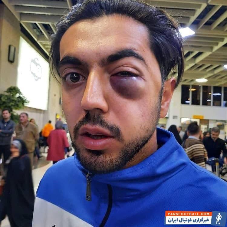 مهرداد عبدی و محمد قریشی در بازی روز گذشته این دو تیم، در یک صحنه برای زدن توپ به هوا پریدند و برخورد این دو بازیکن باعث مصدومیت شدید عبدی شد.