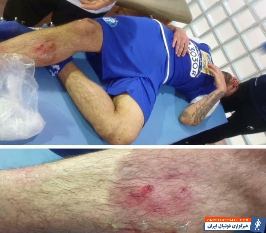 پس از خطای کیروش استنلی روی محمد دانشگر ، عکس پای مدافع آبیها منتشر شده که نشان میدهد بدجور آسیب دیده است.