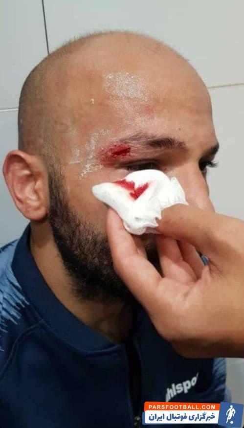 رامتین سلیمانزاده در این صحنه بخاطر برخورد سرش با کف استوک شهباززاده، ابروی خود را شکافته شده و دچار خونریزی دید اما به کارش ادامه داد.