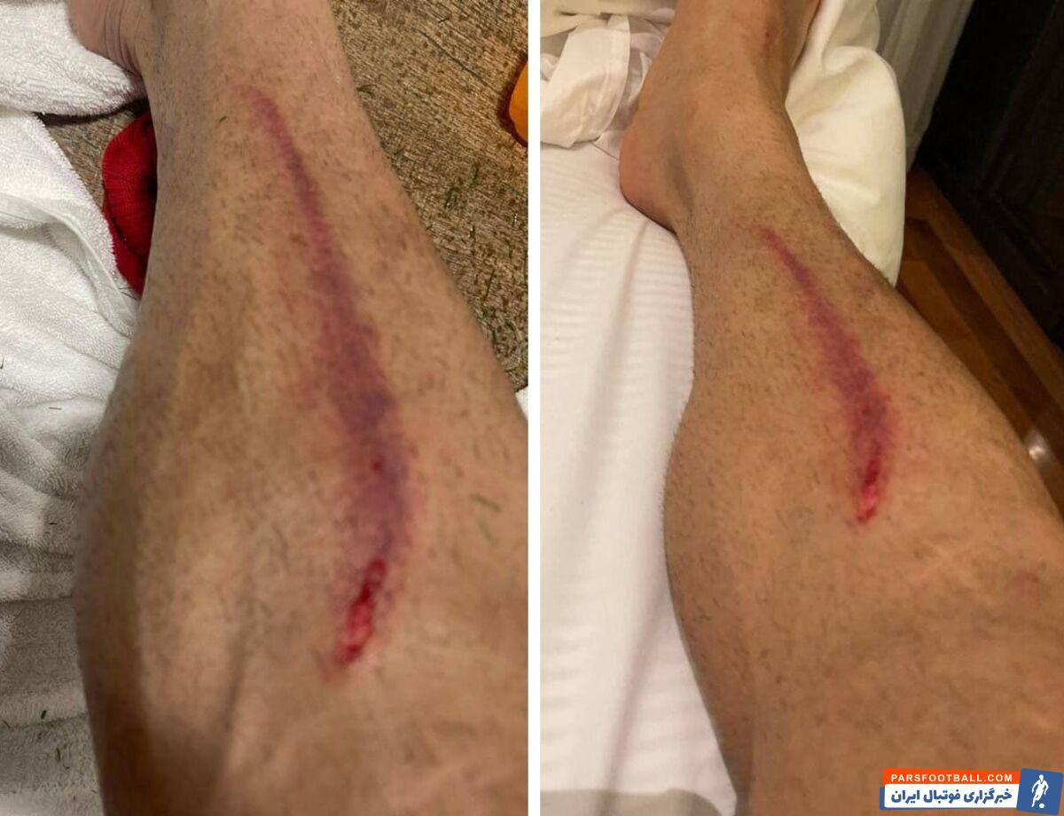امید عالیشاه مدافع شماره پنج تیم الریان برخورد شدیدی با امید عالیشاه داشت و سبب ایجاد زخم در پای این بازیکن شده است.