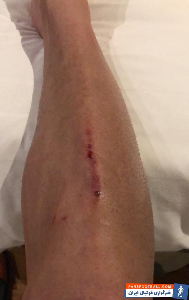 بعد از سوت پایان دیدار دو تیم پرسپولیس و الریان قطر، علی شجاعی هافبک چپ پای تیم پرسپولیس نزد شجاع خلیل زاده رفت تا پس از شکست از او دلجویی کند.